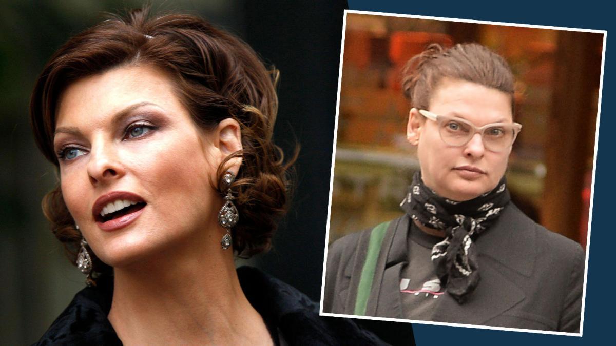 Supermodelo Linda Evangelista se esconde por ter ficado permanentemente deformada